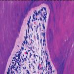 Otosporin reduz reação pulpar inflamatória após clareação dentária de molares de ratos